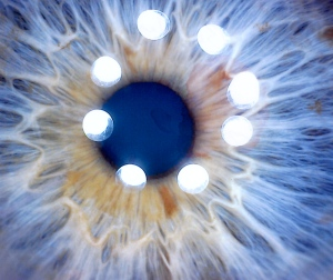 A human eye projected on a computer screen by the Hawk USB Digital Microscope. The white circals are the microscope's lights.  Image by Bryce Engelman.